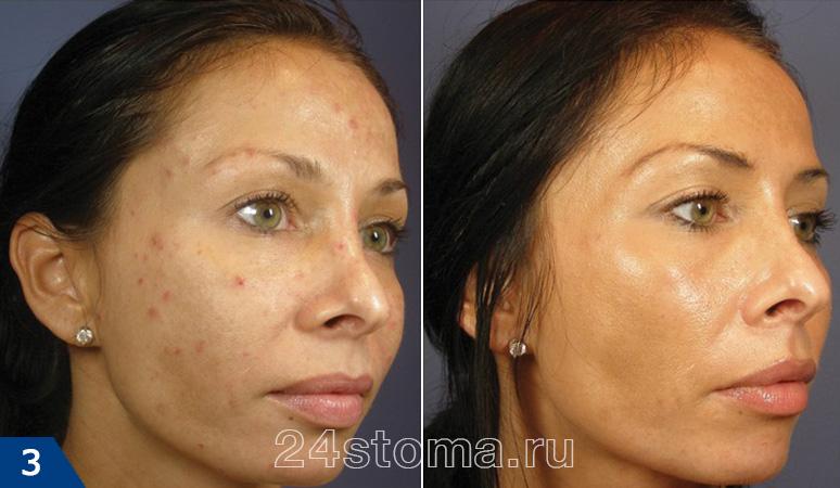 пилинг лица фото до и после