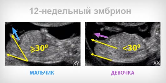 Ultrazvuk datiranje točnost drugo tromjesečje