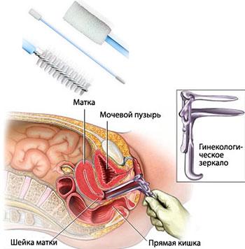 Как правильно сдать анализ пцр в гинекологии. Метод ПЦР в ...