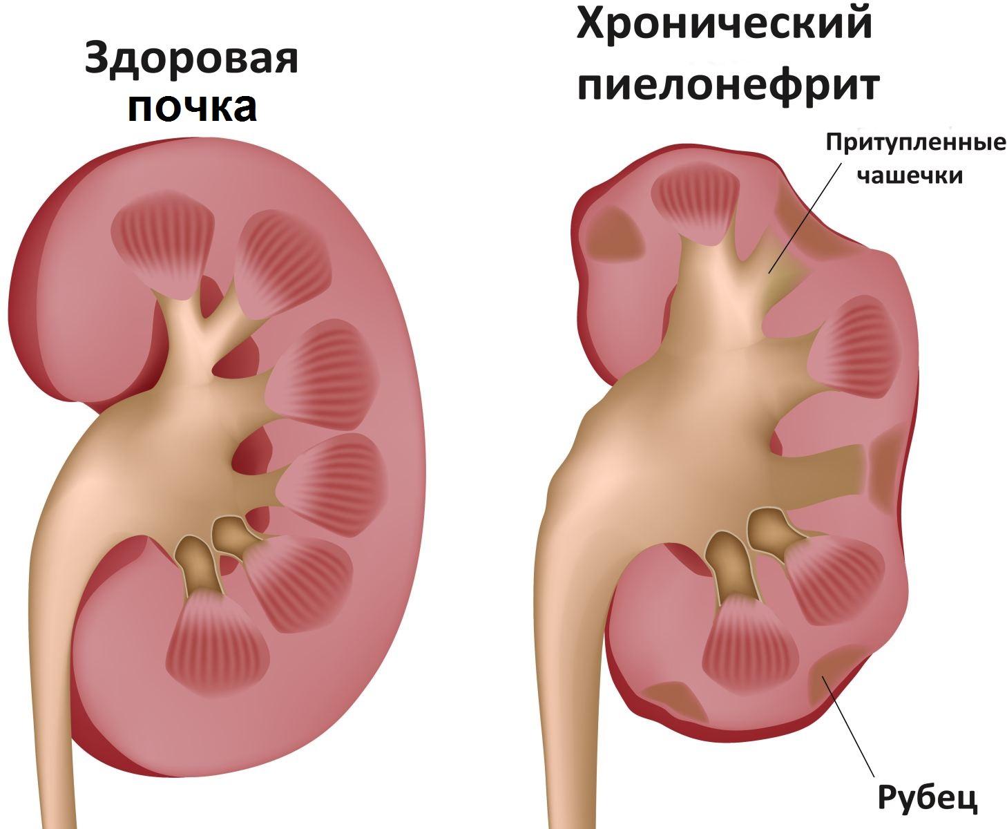 Wenn es im Unterbauch schmerzt. Ursachen von Schmerzen im Unterbauch ...
