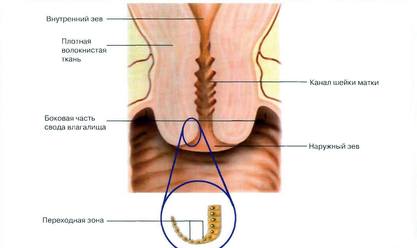 Erosion of the cervix, effects, manifestation and diagnosis