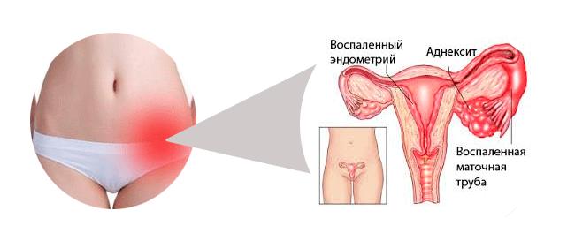 Запалення придатків причини симптоми. Запалення придатків у жінок симптоми. Лікування різної форми запалення придатків.